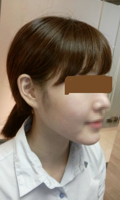 小顔、頬骨縮小、Vライン手術