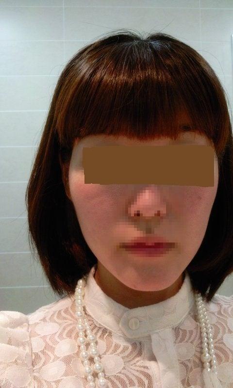 頬骨縮小、頬骨削り、小顔、ID美容外科