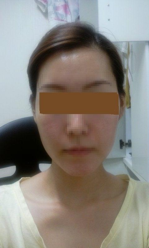 頬骨縮小、小顔、ID美容外科、韓国美容整形