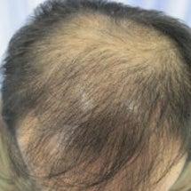 薄毛治療|宮崎県|発…
