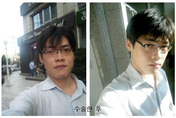 両顎手術、非対称、不正咬合、韓国美容整形