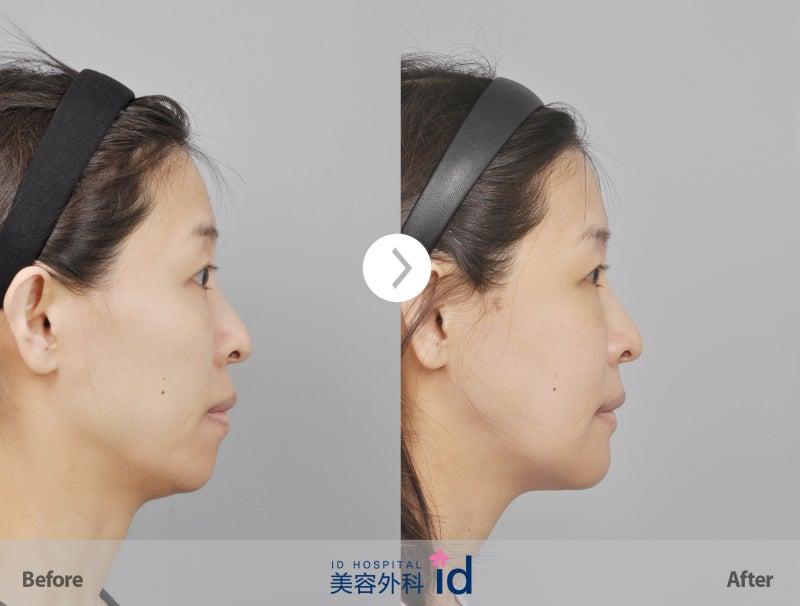 韓国輪郭、ID美容外科、頬骨削り、エラ張り
