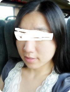 ID美容外科、韓国整形、鼻整形、鼻柱