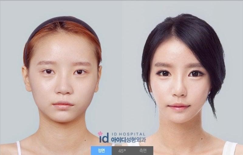 Vライン手術、輪郭、韓国輪郭、ID美容外科
