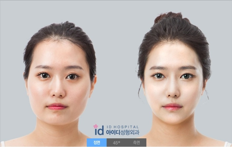 Vライン手術、頬骨縮小、エラ削り、顎修正