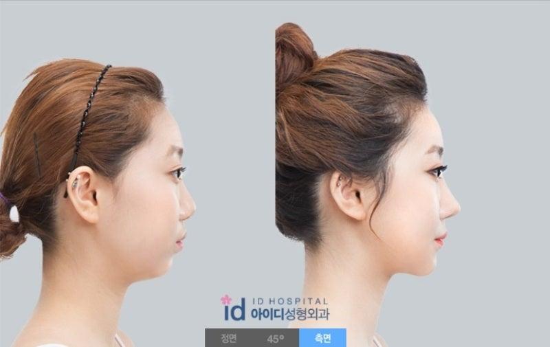 ID美容外科、鼻先、鼻筋、ダンゴ鼻