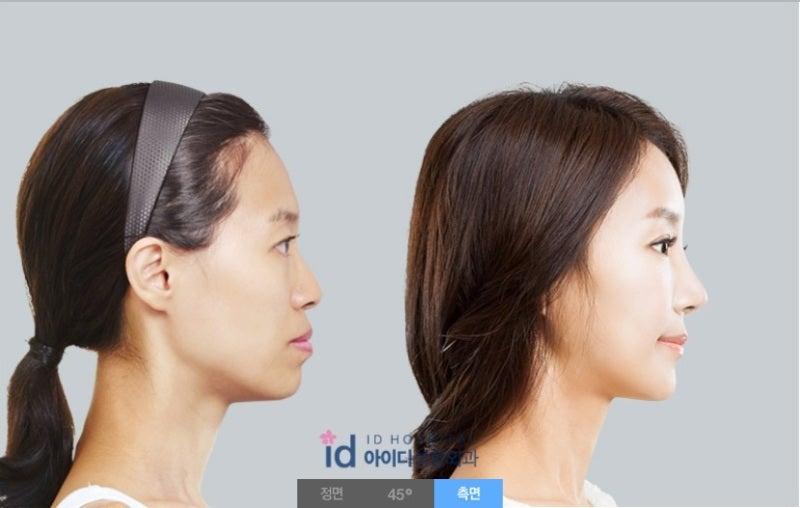 韓国美容整形、鼻整形、曲がり鼻矯正