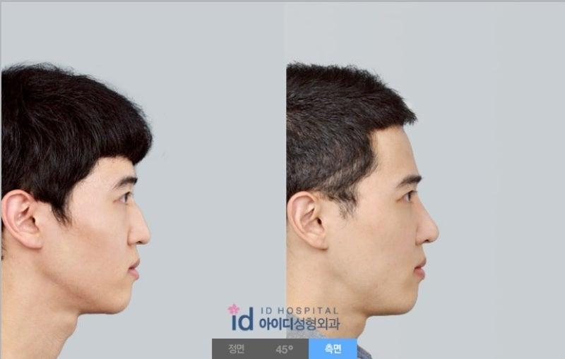男性鼻整形、鼻整形、ID美容外科、わし鼻