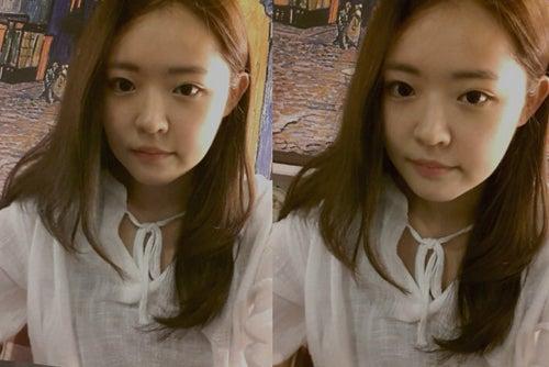 両顎手術、ID美容外科、韓国美容整形、小顔