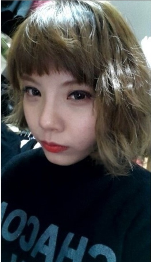 ID美容外科、韓国美容整形、二重手術