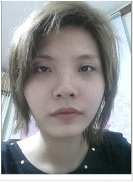 ID美容外科、目付き矯正、二重手術