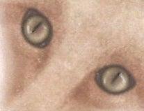 1_eye