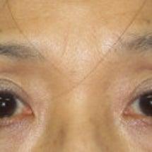 【若返り】上瞼の凹み…