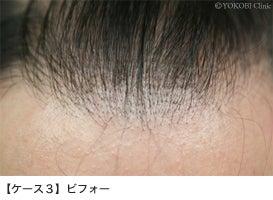 自毛植毛の失敗で悩んでいる方 植毛のやり直しは任せてください