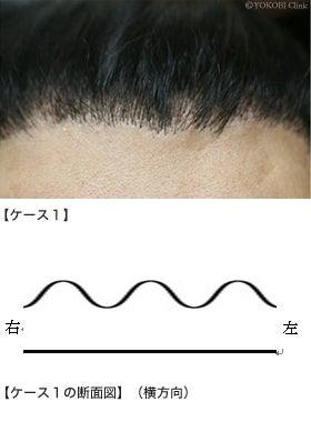 $自毛植毛の失敗で悩んでいる方 植毛のやり直しは任せてください
