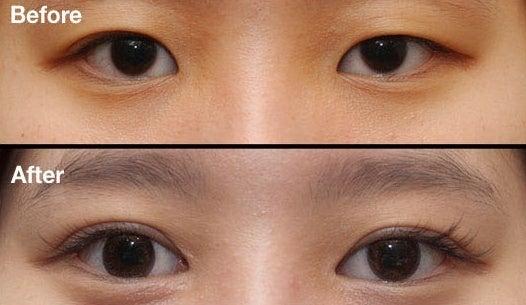 垂れ目切開、目頭切開、目付き矯正、二重手術