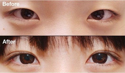 ID美容外科、ID皮膚科、二重手術、目尻切開