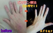 ビオチン療法改善ビタミンC皮膚炎