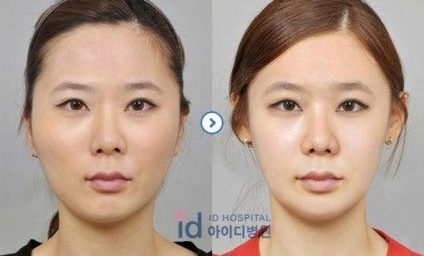 頬骨縮小、頬骨削り、Vライン手術、エラ張り