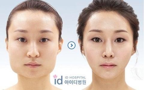 頬骨削り、頬骨縮小、ID美容外科、輪郭整形