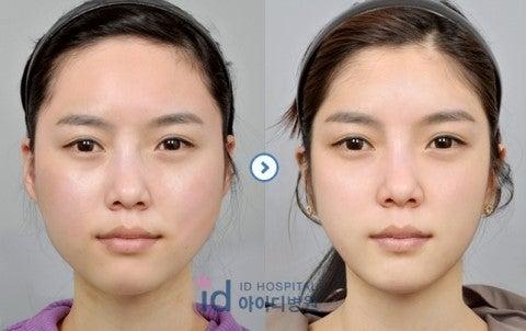 ID美容外科、頬骨縮小、韓国輪郭