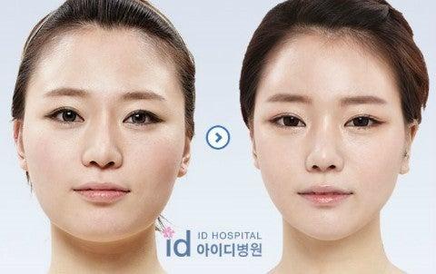 ID美容外科、韓国輪郭、小顔、面長