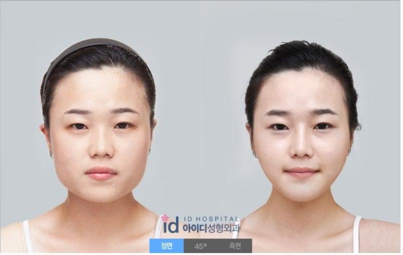 エラ削り、Vライン手術、エラ張り、小顔