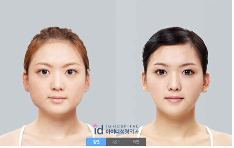 面長、ID美容外科、輪郭整形、エラ削り