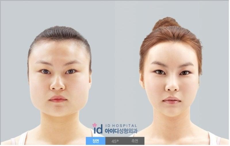 ID美容外科、輪郭形成、エラ削り、エラ張り
