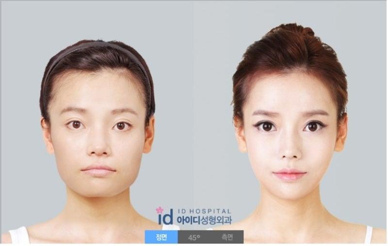 韓国美容整形、ID美容外科、輪郭整形、頬骨縮小
