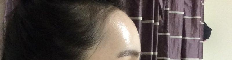 額の脂肪移植、ID美容外科、韓国美容整形