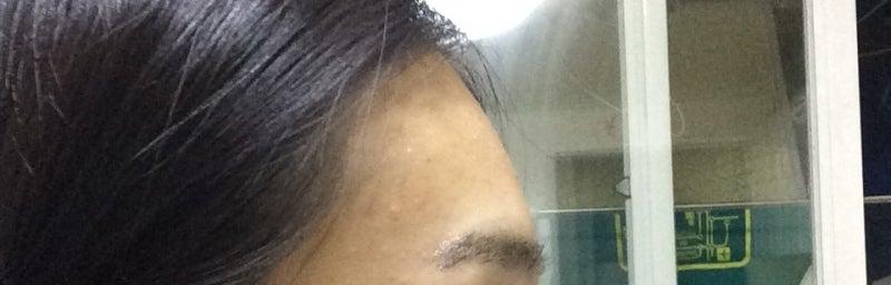 ID美容外科、韓国整形、脂肪移植
