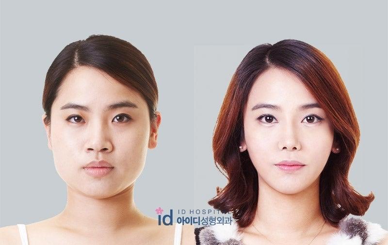 ID美容外科、二重手術、鼻整形、目尻切開