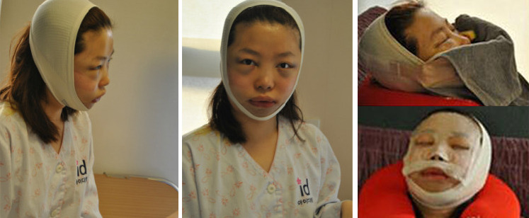 Vライン手術、ID美容外科、韓国美容整形