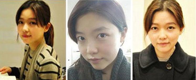 韓国美容整形、ID美容外科、小顔、エラ削り