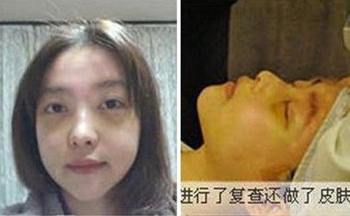 ID美容外科、エラ張り、エラ削り、小顔
