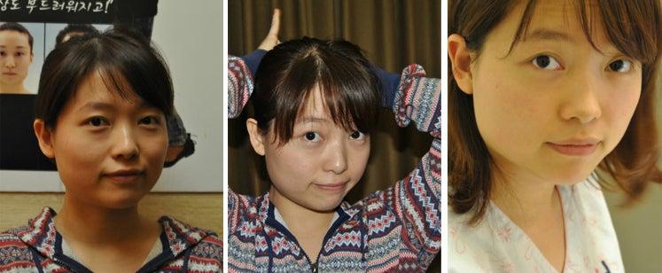 ID美容外科、韓国美容整形、韓国輪郭、小顔