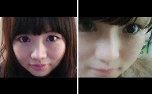 ID美容外科、韓国美容整形、輪郭、小顔