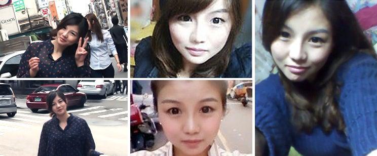 韓国輪郭、ID美容外科、Vライン手術