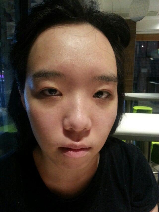 ID美容外科、韓国美容整形、両顎手術