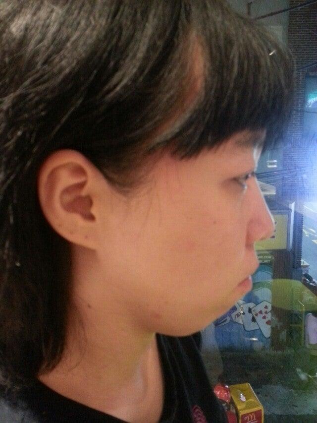 不正咬合、両顎手術、ルフォー、小顔