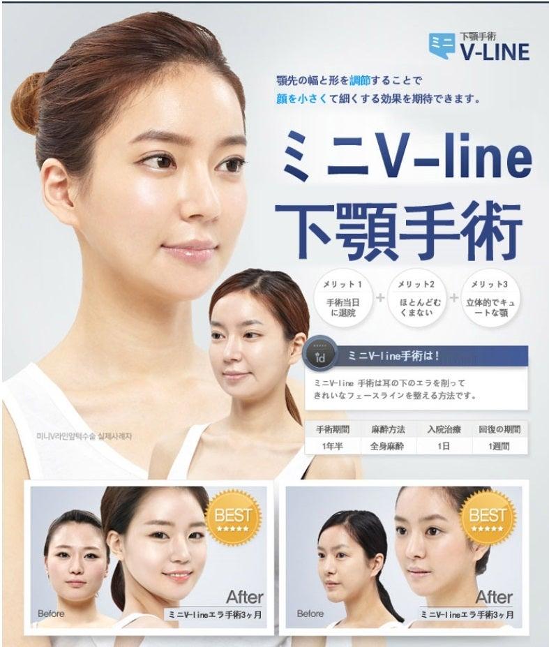 ID美容外科、Vライン手術、ミニVライン