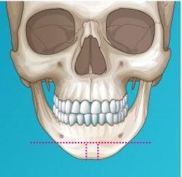 ミニVライン手術、韓国輪郭、しゃくれ顎
