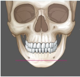 ID美容外科、ミニVライン、顎手術