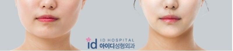 面長、ミニVライン手術、韓国輪郭、ID美容外科