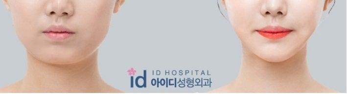 ID美容外科、ミニVライン手術、解けるプレート