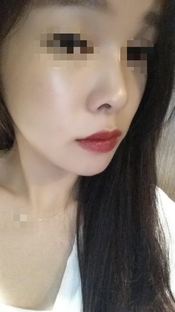 童顔、輪郭整形、頬骨縮小