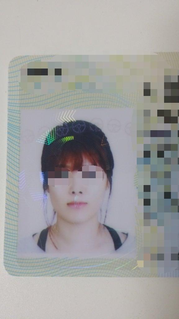 ID美容外科、頬骨縮小、Vライン手術、小顔