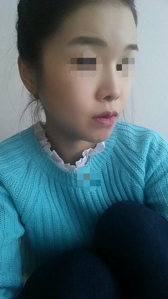 韓国輪郭整形、Vライン手術、頬骨削り