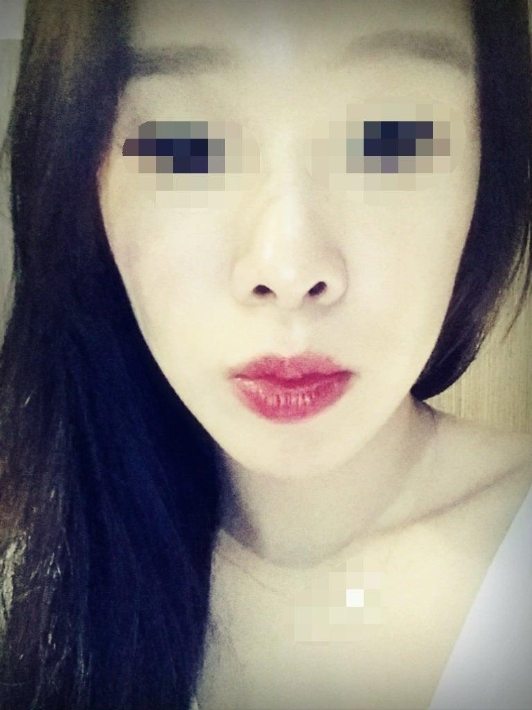 ID美容外科、小顔、頬骨削り、Vライン手術